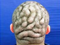 صورة رجل يعاني من حالة مرضية نادرة تجعل رأسه مثل المخ